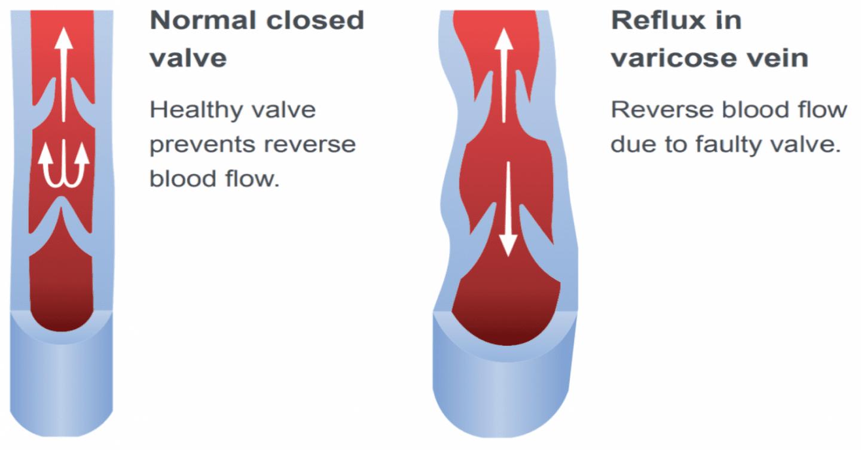 Normal veins VS varicose veins