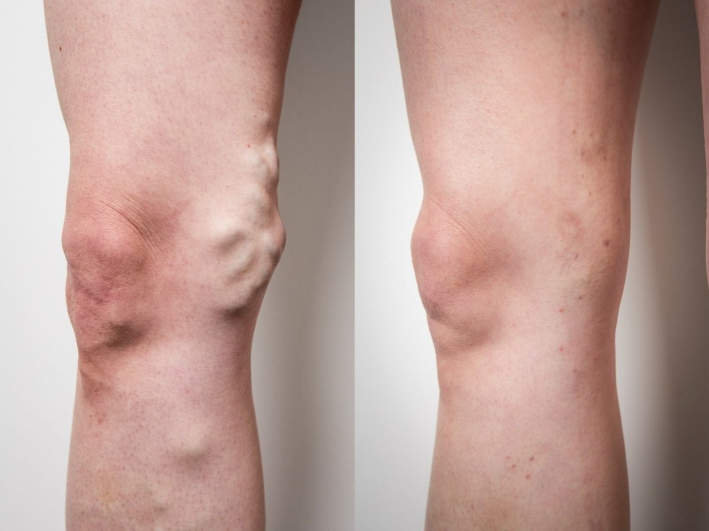 Varicose veins before treatment and 6 weeks after treatment