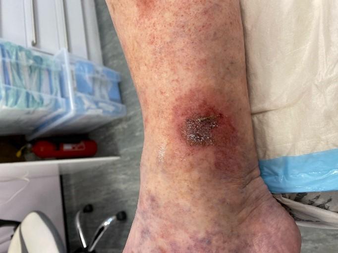 Venous leg ulcer before treatment