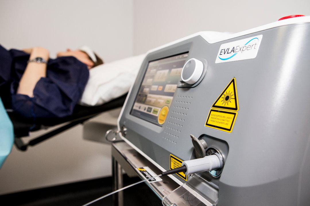 varicoză operation laser ca ea)