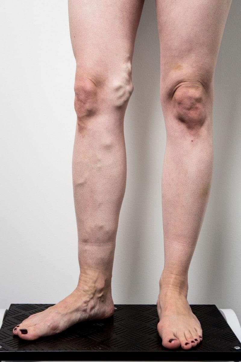 Legs before varicose veins treatment