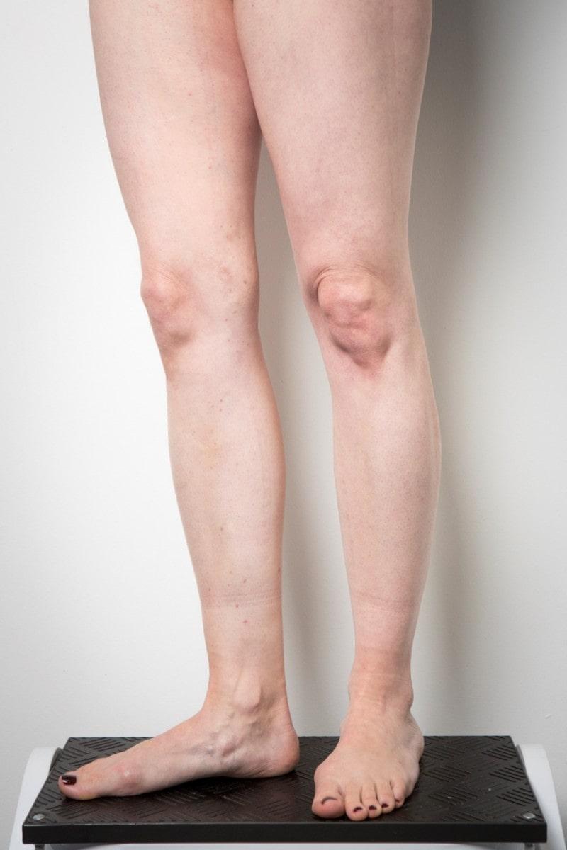 Legs after varicose veins treatment