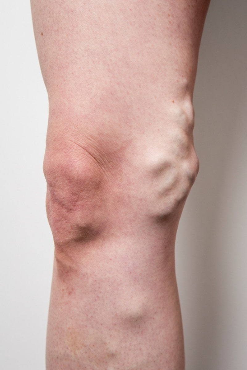 Leg before varicose veins treatment