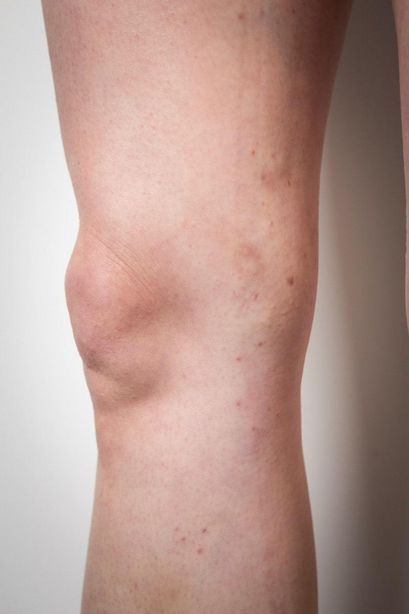Leg after varicose veins treatment