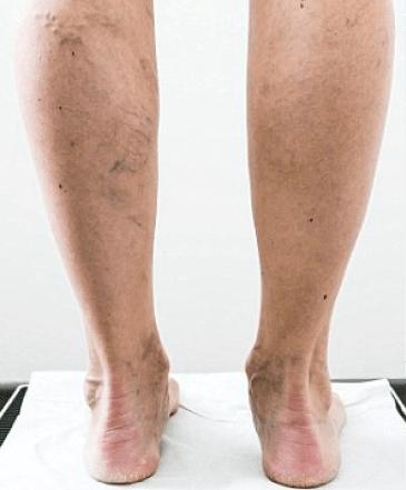 Julia Bradbury's legs before varicose veins treatment