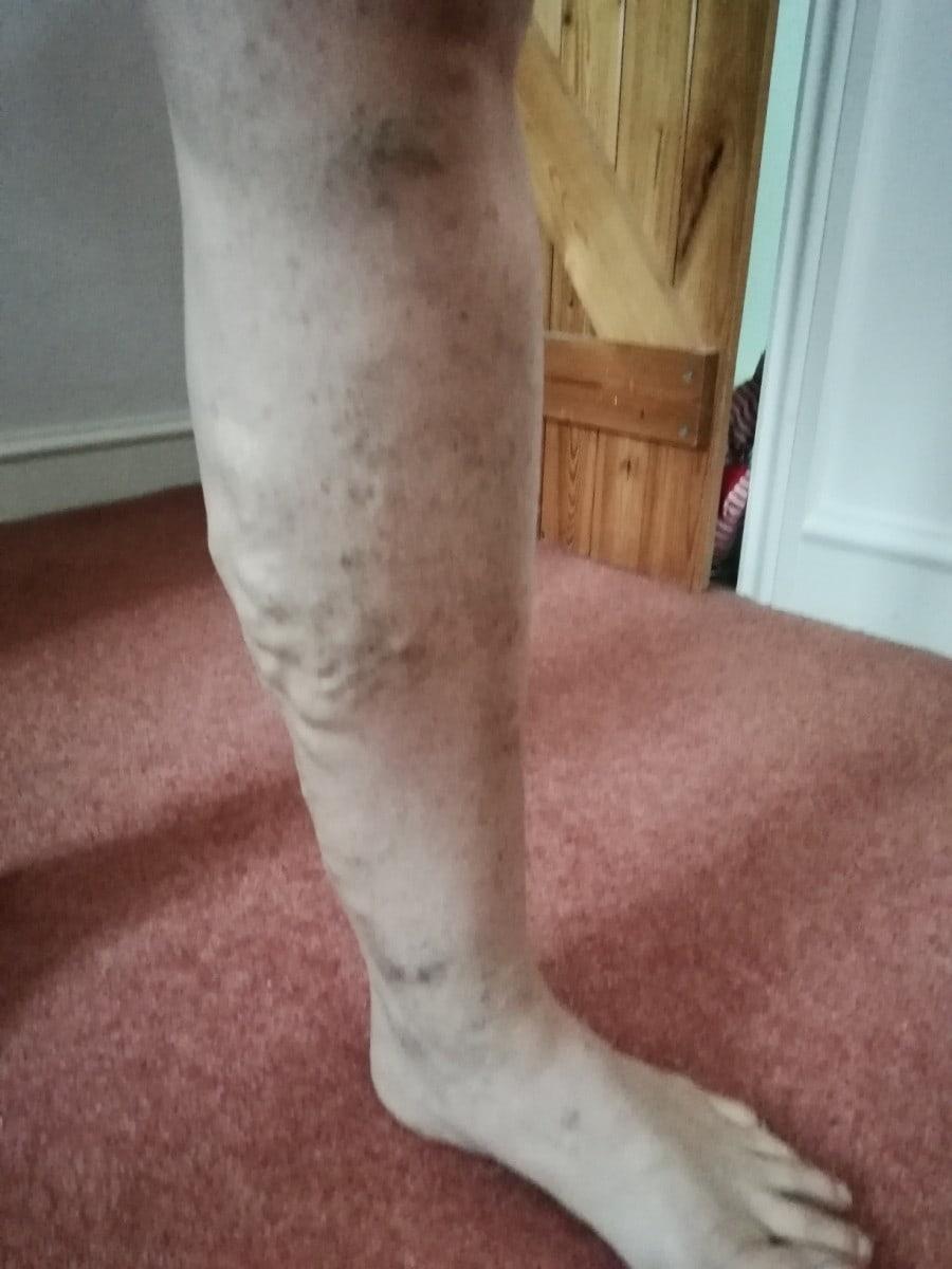 Ruth's legs before varicose veins treatment