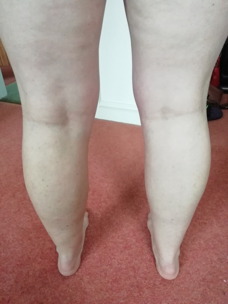 Ruth's legs after varicose veins treatment