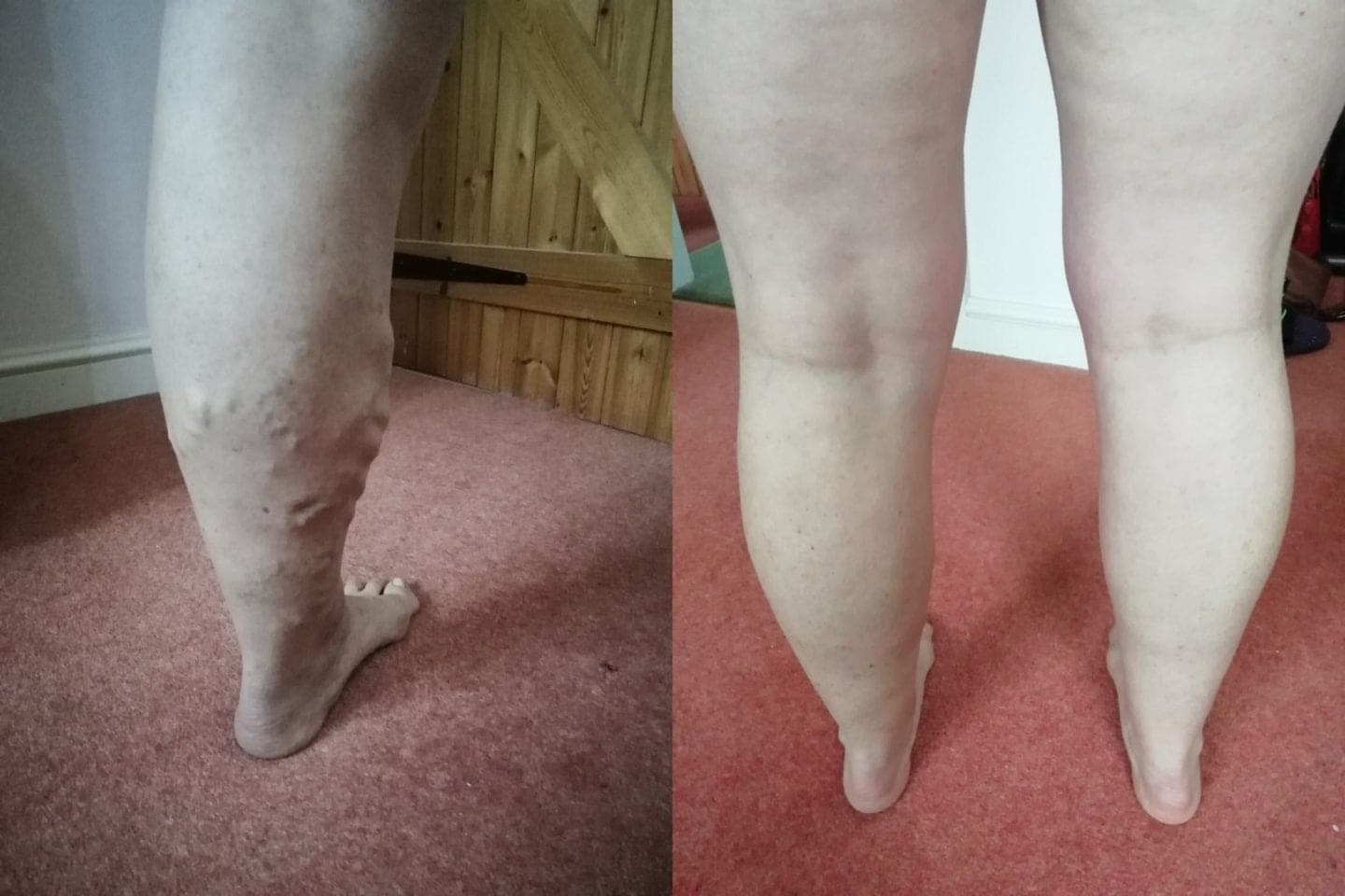 Ruth's leg before & after varicose veins treatment