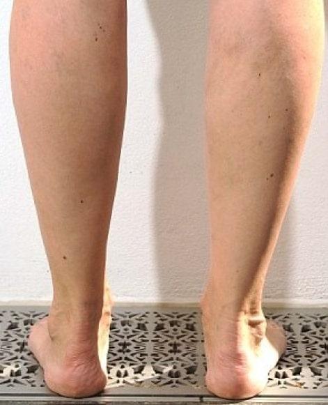 Julia Bradbury's legs after varicose veins treatment